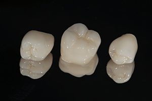 three dental crowns against a black background