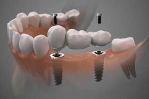 Illustration of implant-retained bridge to replace three missing teeth